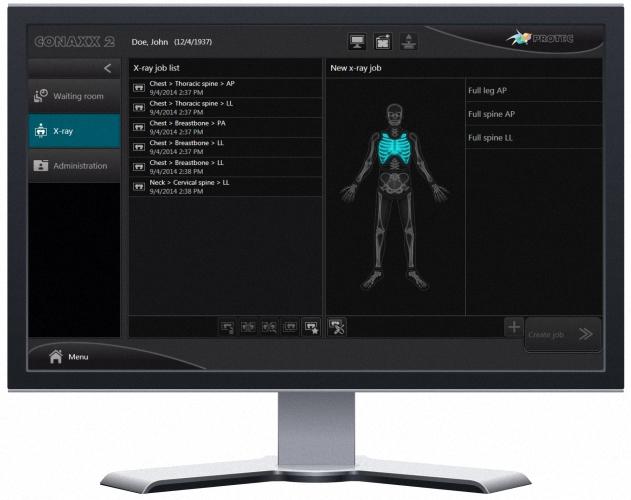 PRS 500 E digital Digitales Radiographie(DR) System
