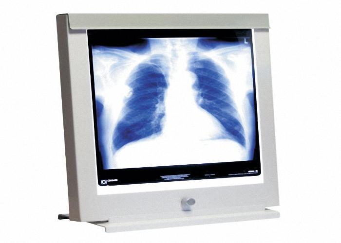 LED Röntgenbildbetrachter Leuchtkasten