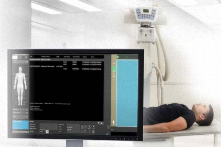 VISION URadiografiesystem