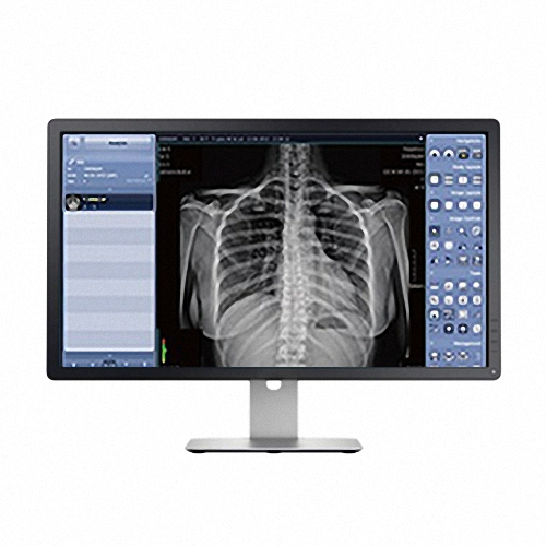 1012WGB DR DETEKTOR digitales Röntgen
