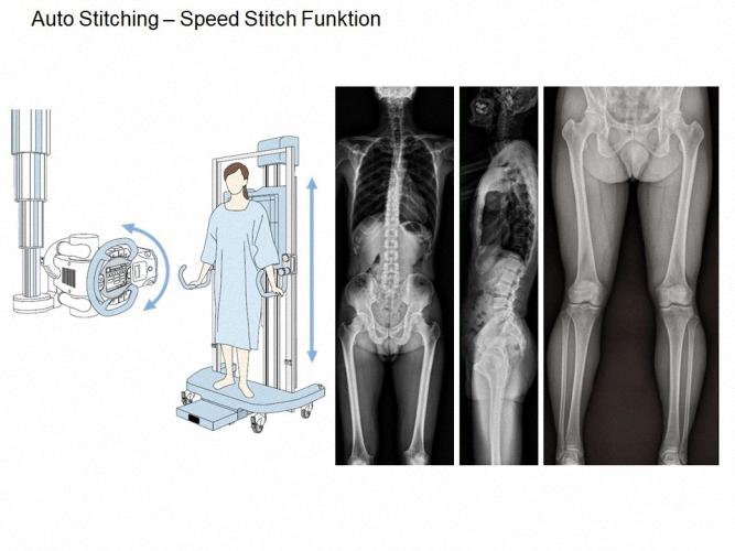 Shimadzu RADspeed Pro DR Digitales Röntgensystem