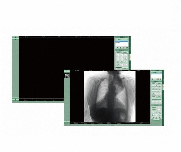 Flachbilddetektor Röntgendetektor Wifi Flatpanel Detektor 4343 DR DETEKTOR digitales Röntgen DR Flat Panel